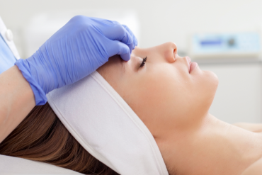 Microdermabrasion aux diamants